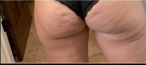 Marcia's butt and thigh cellulite before photos for cellulite before and after success story