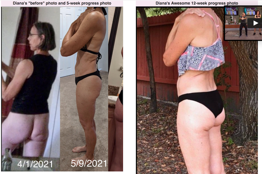Diana B cellulite success story cellulite before and after progress photos side by side